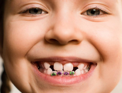 6 Things About Two-Phase Orthodontic Treatment You Should Know