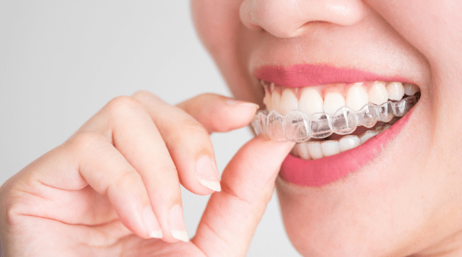 girl with Invisalign curing overbite